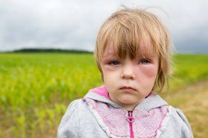 Niña reacción alérgica